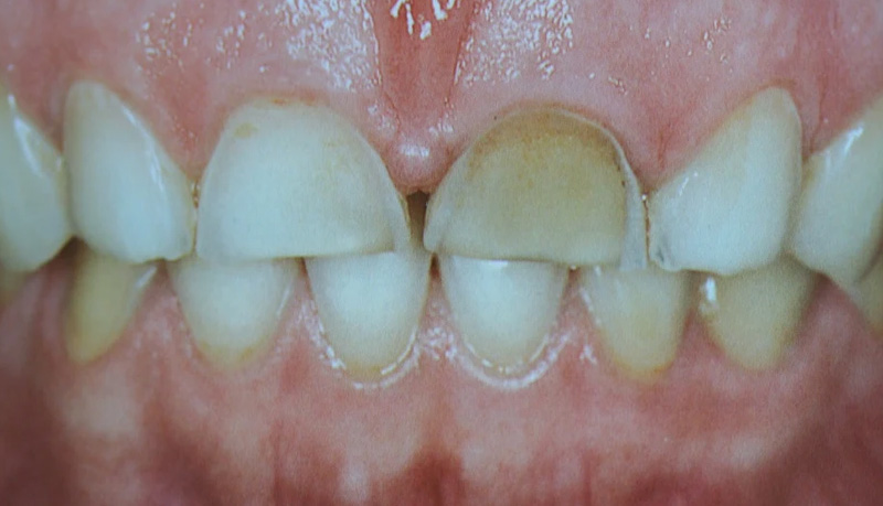 Dental abraction