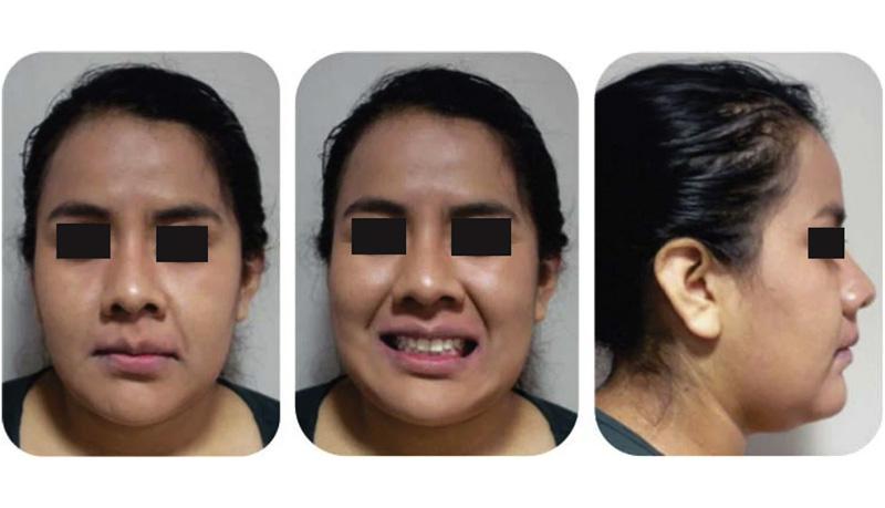 Abnormal face apperance