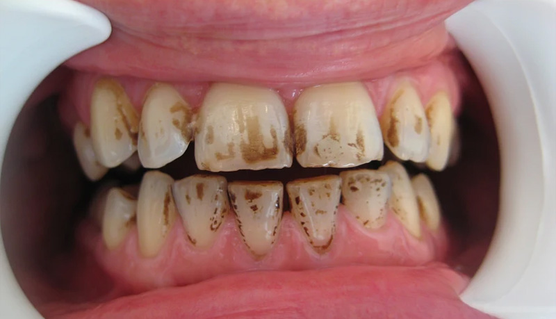 Pigmented teeth (stained)