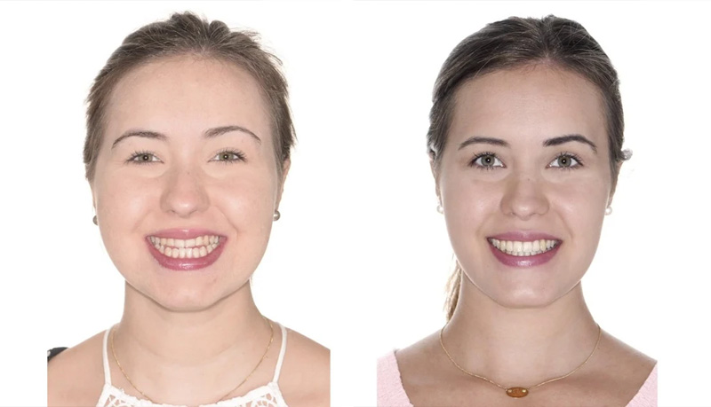 Facial asymmetries